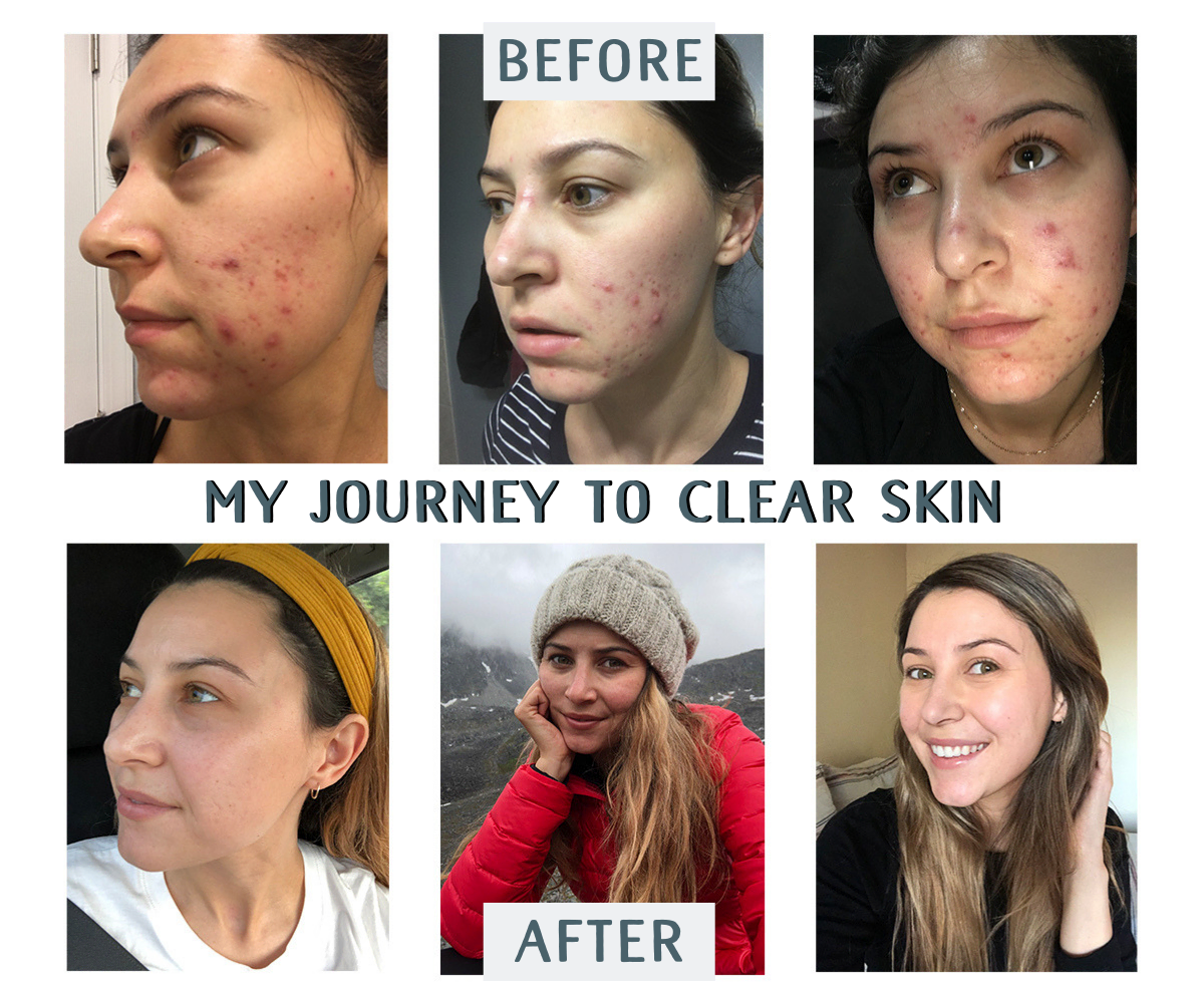 Traveling With Acne - My Journey To Clear Skin - Renee Roaming