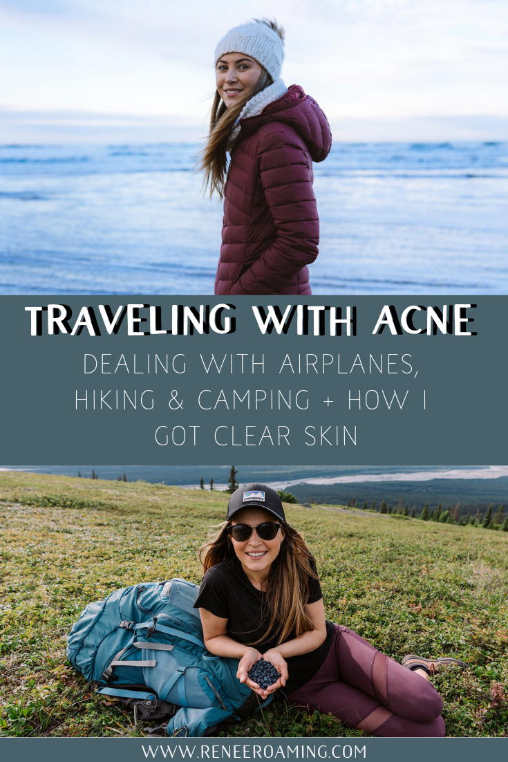 Traveling with Acne - Dealing with Airplanes, Hiking and Camping + How I Got Clear Skin - Renee Roaming